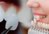 مناسبترین شیوه تغییر فرم دندانها به جای ارتودنسی+جزئیات
