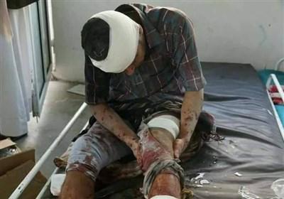 صنعا میں تیل کی کمپنی پر سعودی حملے میں 16 یمنی مسلمان شہید یا زخمی + ویڈیو اور تصاویر