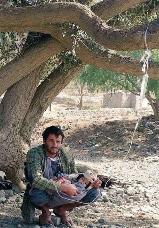 بسبب العدوان السعودی على الیمن ....أصبحت الشجرة بدیلا لادوات العنایة
