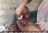 نیروهای انصارالله چگونه با اسرای مجروح رفتار میکنند