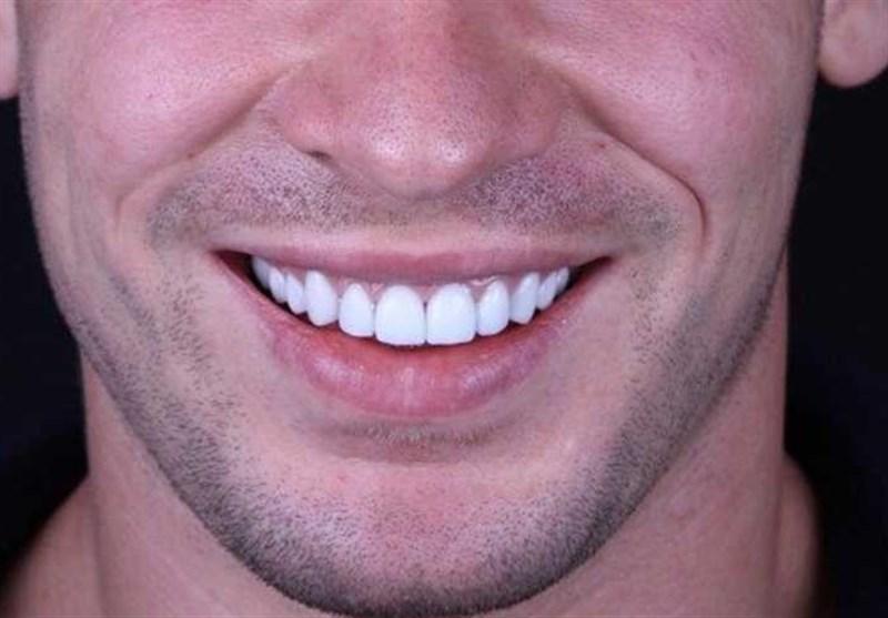 حل جدید لتبییض الأسنان
