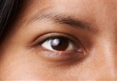 Eyes Can Indicate Personality Type