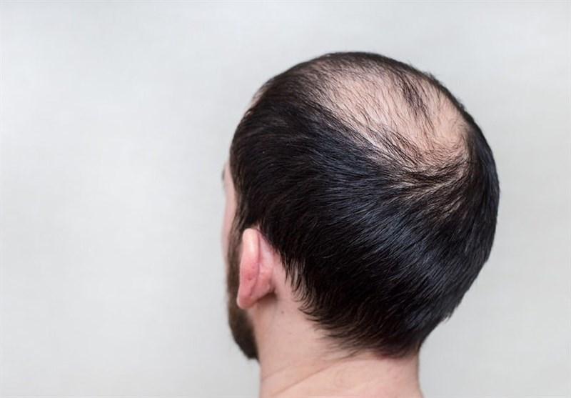 New Experimental Drug Reverses Hair Loss, Skin Damage in Mice