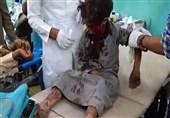 طفل من ضحایا مجزرة النظام السعودی فی ضحیان بالیمن