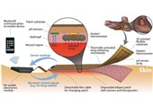 Researchers Use Flexible Bioelectronics to Help Wounds Heal Better