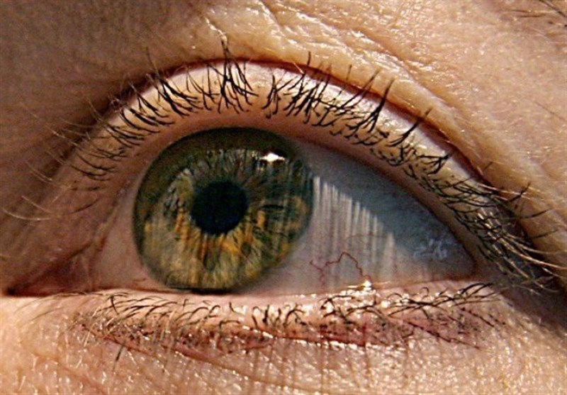 Predicting Alzheimer's Disease May Be Possible Using Eye Exam