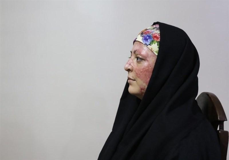 حال و روز یک مورد اسیدپاشی در تبریز بعد از چهار ماه