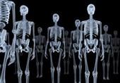 سه عضوی که سریعتر در مقابل اشعه ایکس دچار سرطان میشوند