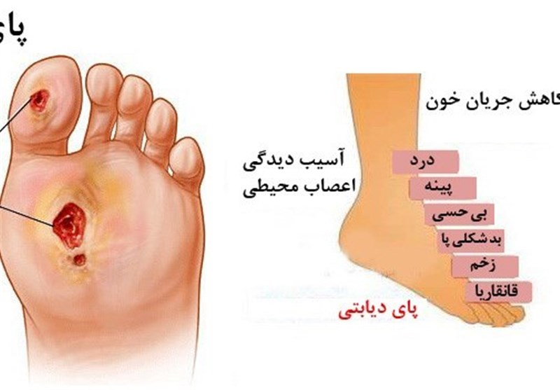وقتی نوعی زخم کشندهتر از سرطان میشود/ دیابت بعد از تصادف علت دوم قطعی پا