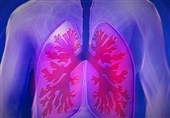 Research Revealed: Toxic Effects of Drugs in Lungs More Widespread than Thought