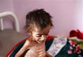 هشدار 35 سازمان حقوقی: یمن در آستانه قحطی است