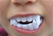دندان شیشهای دراکولا، کودک 5 ساله را روانه بیمارستان کرد