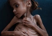 ابتکار: باید به حقوق 85 هزار کودک تلف شده یمنی توجه شود