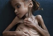Starving Girl Who Became Symbol of Yemen Crisis Dies