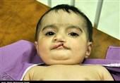 جراحی رایگان 373 مبتلا به بیماری شکاف کام و لب در ایلام انجام میشود