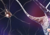 Scientists' New Discovery Bring Hope for Parkinson's Patients