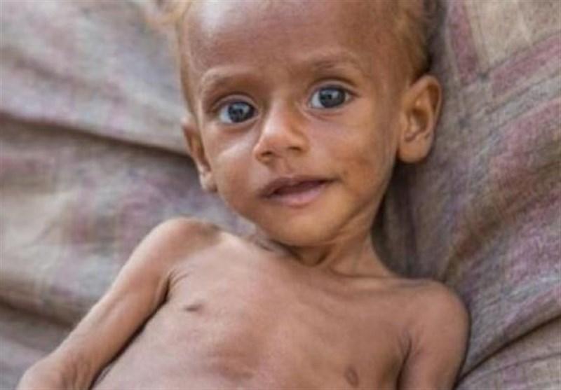 سناتور آمریکایی: گرسنگی و بیماری 85 هزار کودک یمنی را به کام مرگ کشانده است