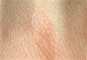 Researchers Regrow Hair Strands on Damaged Skin