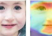 AI Can Be Used to Diagnose Rare Disorders with Just A Picture