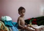 کشته و زخمی شدن 6700 کودک یمنی از ابتدای تجاوز عربستان
