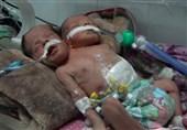 جان باختن دوقلوهای به هم چسبیده یمنی بهدلیل کارشکنی عربستان