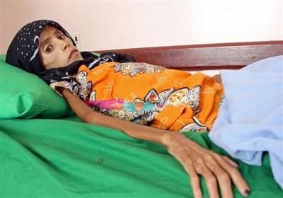 فاطمة قباء.. طفلة یمنیة مریضة تموت جوعا إثر حصار السعودیة على الیمن