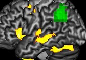 Early Detection Method Finds Damaging Effects of Dementia