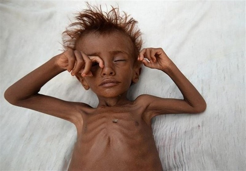 UNICEF: 92% of Babies in Yemen Are Underweight at Birth