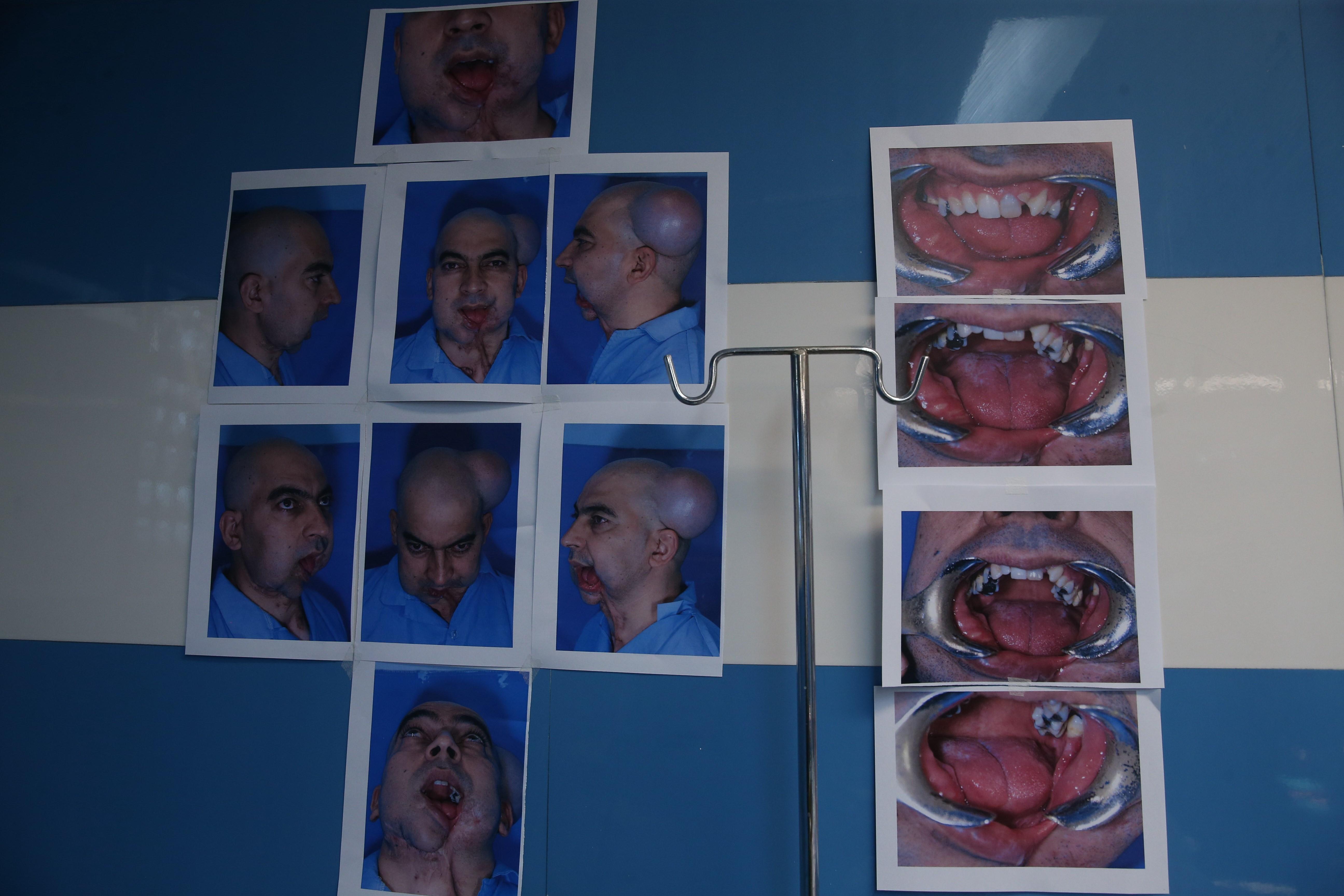 انجام جراحی منحصربهفرد بازسازی فک و صورت در بیمارستان آیتالله طالقانی