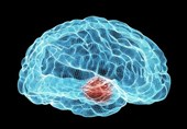 Hope for Parkinson's as Researchers Reverse Symptoms in Mice