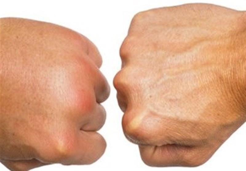 اگر دستهایتان باد میکند گوش بزنگ باشید