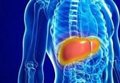 درمان سیروز کبدی با سلول درمانی
