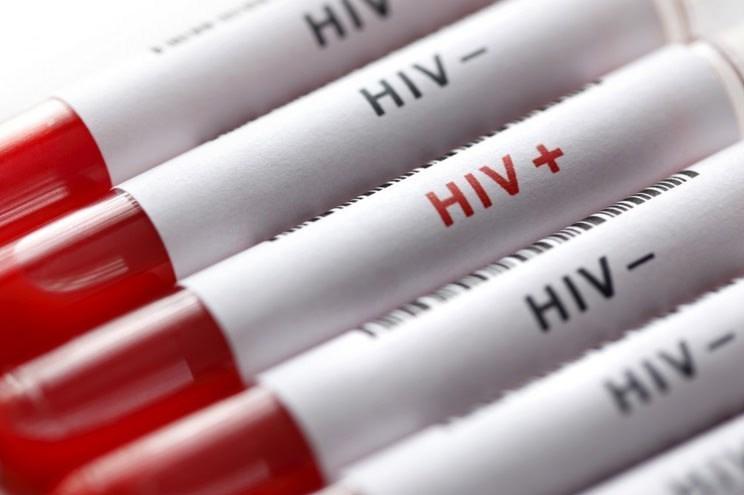 """""""ختنه"""" بهترین روش برای پیشگیری از ابتلا به """"ایدز"""""""