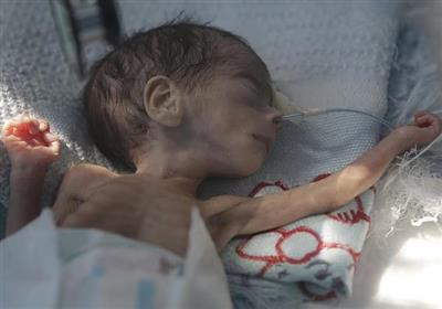 فاجعه انسانی در جنگ یمن؛ کودکانی که پوستشان به استخوان چسبیده