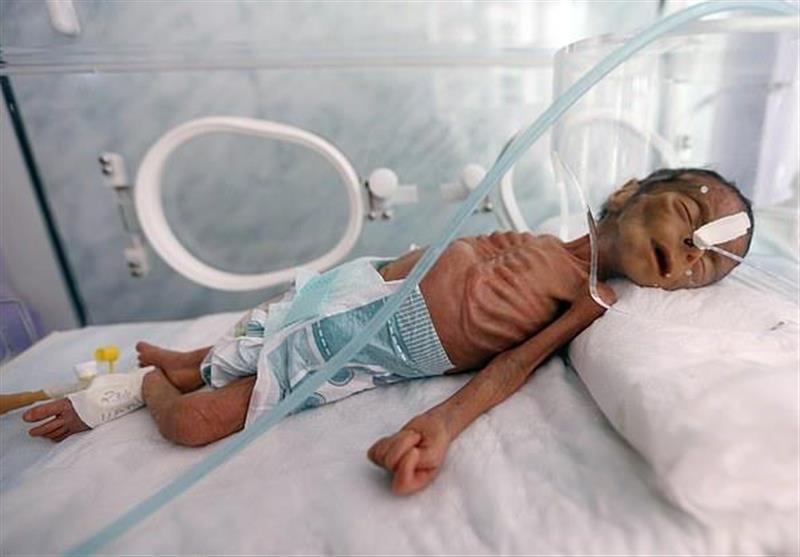 ابتلای 400 هزار کودک یمنی به سوء تغذیه شدید در نتیجه حملات عربستان