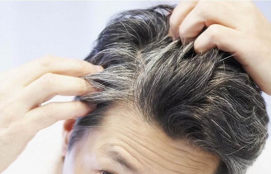 """""""اضطراب و استرس"""" باعث خاکستری شدن مو میشود"""