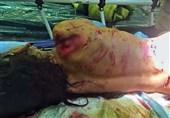 تهران| توضیحات شهرداری درباره حمله سگهای ولگرد به یک دختربچه