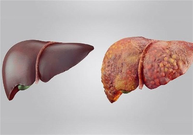 پیشگیری از سرطان کبد با یک راهکار ساده!