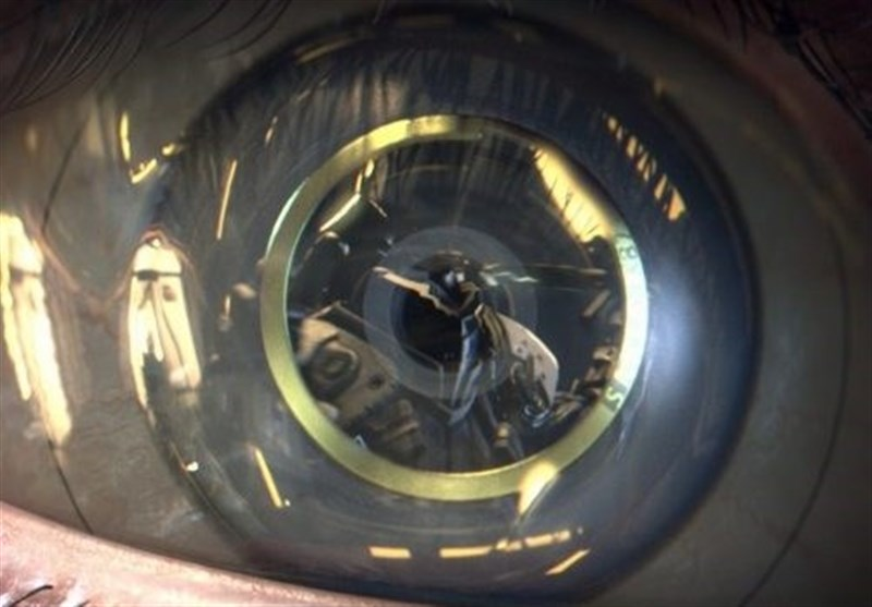 Researchers Say Bionic Eye Coming in Five Years