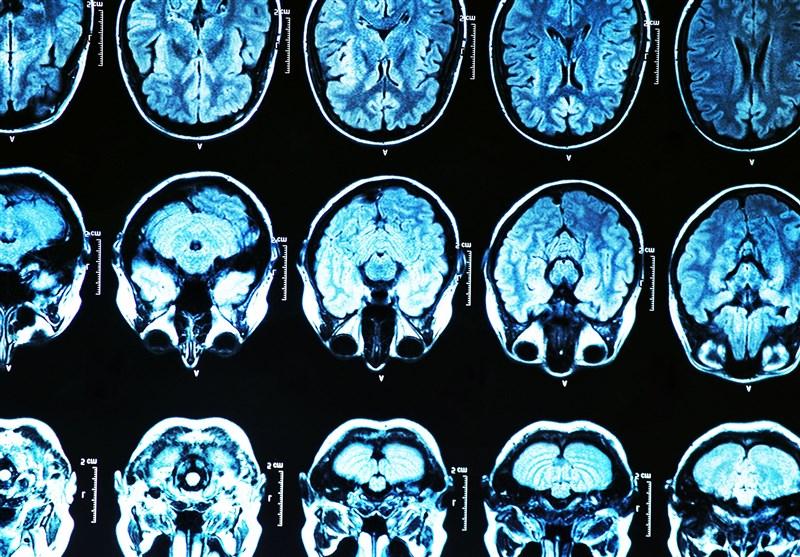 کشف ارتباط مستقیم بین مسواک زدن و زوال عقل
