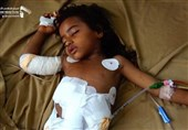 Yemen Aid Lifeline near 'Breaking Point': UN Food Agency