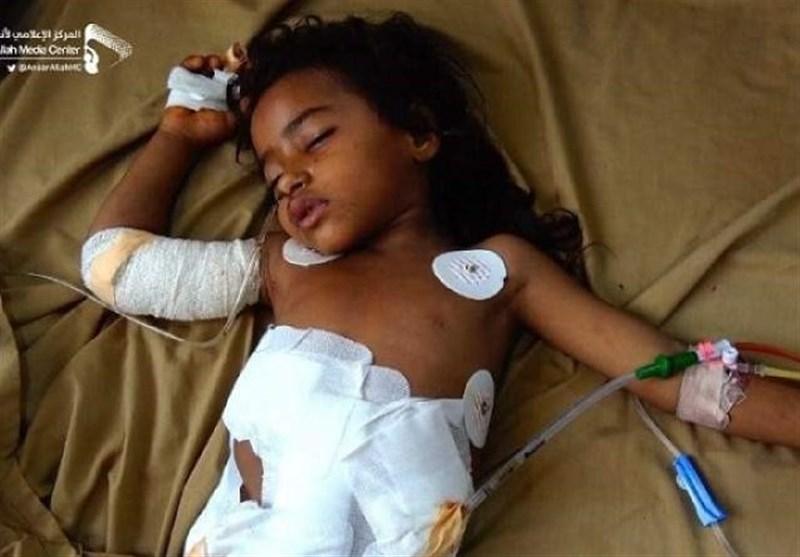 Yemen Aid Lifeline near 'Breaking Point': UN Food Agency