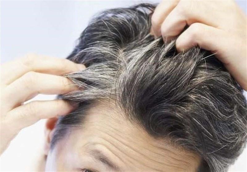 """فیلم// چگونه """"سفیدی موی سر"""" را درمان کنیم؟!"""