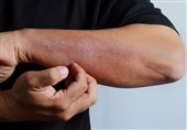 Skin Rashes Should Be Added to List of COVID-19 Symptoms