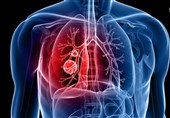موفقیت دانشمندان ایرانی در ترمیم بافت ریه بیماران کرونایی با سلول بنیادی / درمان بیماران فلج مغزی آغاز شد