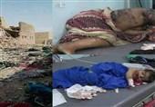 طیران العدوان یستهدف حفلة زفاف للنساء فی الجوف.. ارتفاع ضحایا الجریمة إلى أکثر من 25 شهید