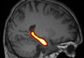 Study Links Daily Job's Physical Stress to Cognitive Decline, Memory Loss