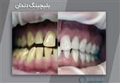 بلیچینگ دندان چیست؛ با روشهای انجام آن آشنا شوید