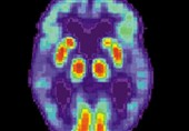 Hydrogen Sulfide Could Guard against Alzheimer's Disease