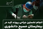 انجام نخستین جراحی پیوند کبد در بیمارستان مسیح دانشوری